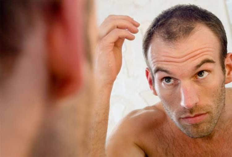 perdere i capelli