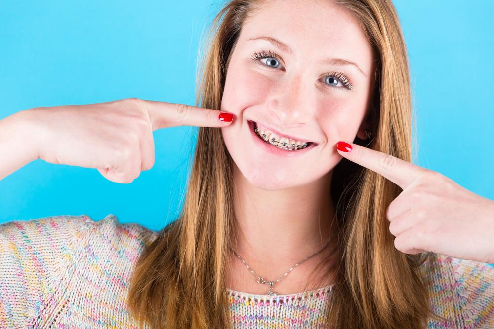 apparecchio ai denti